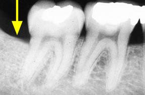 bone-loss_01_after