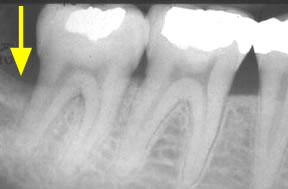 bone-loss_01_before