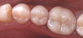 fillings-05-after