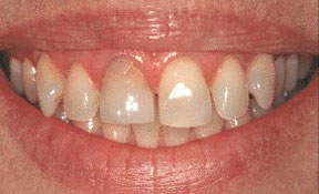 veneers_03_before