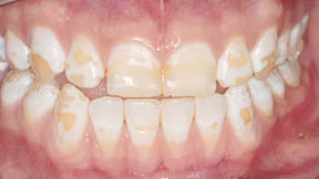 veneers_06_before