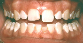 veneers_07_before
