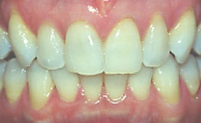 veneers_11_before