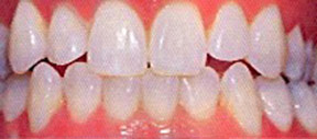 whitening_00_after