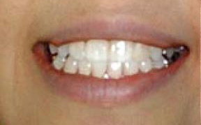 whitening_02_after